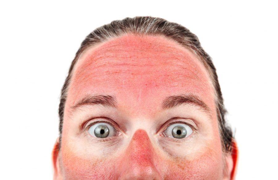 sun-burnt-face.jpg